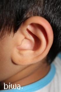 次男の耳・その①
