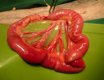 腸管炎症縮小