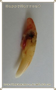 犬歯裏側2