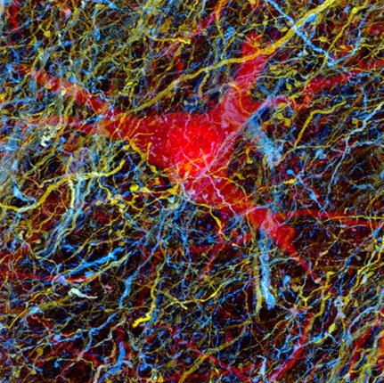 マウスニューロン