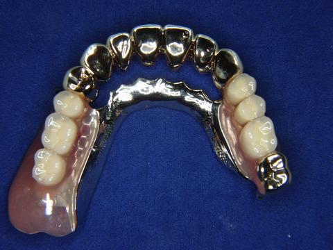入れ歯は嫌、でもインプラントはしたくないという患者様へ