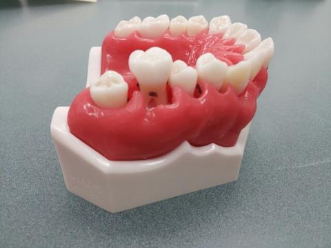歯周病模型
