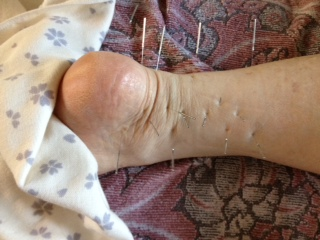 左足首 置鍼