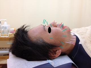 函館 美容鍼灸 めぐみ治療院