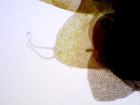 Nipponolejeunea pilifera 毛