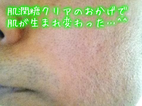 夫のニキビ痕アフター肌潤糖