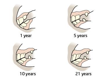 age_horse_teeth.jpg