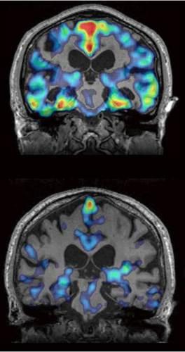 脳内タウ蛋白質