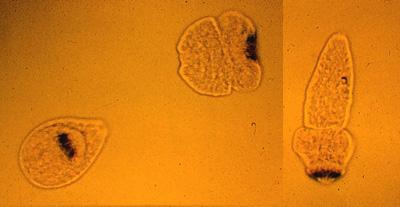 Echinococcus.jpg