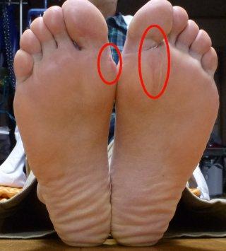 s足の肉刺