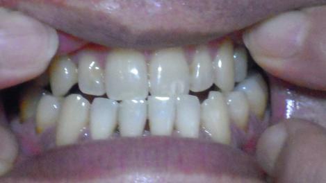 歯科矯正してたので歯並びはイイが歯周病治療中のデジカメ写真画像ですわ