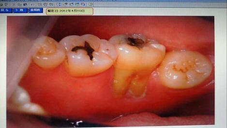 歯科医院で撮られた歯周病による私の奥歯の状況の写真画像にショックを受けました