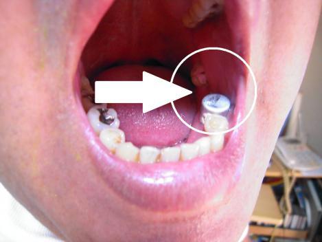 歯周病で抜けた奥歯にブリッジを設置する準備中の歯の様子を嫁がデジカメ撮影してくれた