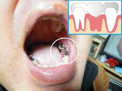 歯周病で奥歯を抜けてブリッジ治療を受けた歯をデジカメ写真撮影した