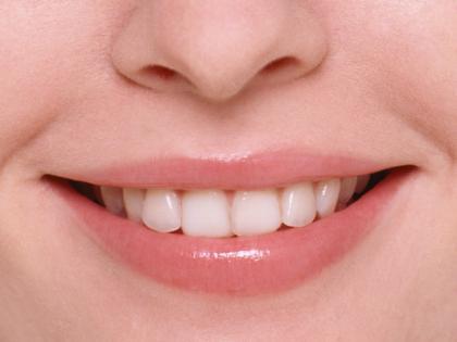 120320_歯