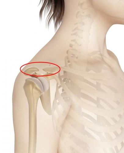 肩鎖関節2